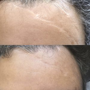 Scar camouflage before and after