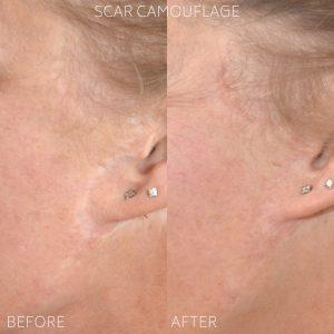 Scar camouflage tattoo treatment